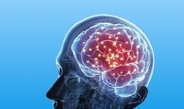 뇌 자극 치료기 시장 주목